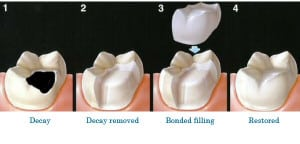 Tooth Color Fillings Cavity