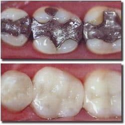 dental fillings richmond va