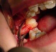 DentalSurgicalExtraction