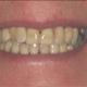 teeth after corrective work gaps missing richmond va