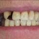 teeth Before gaps missing teeth richmond va