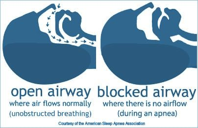 Obstructive Sleep Apnea Appliances graphics showing how sleep apnea occures