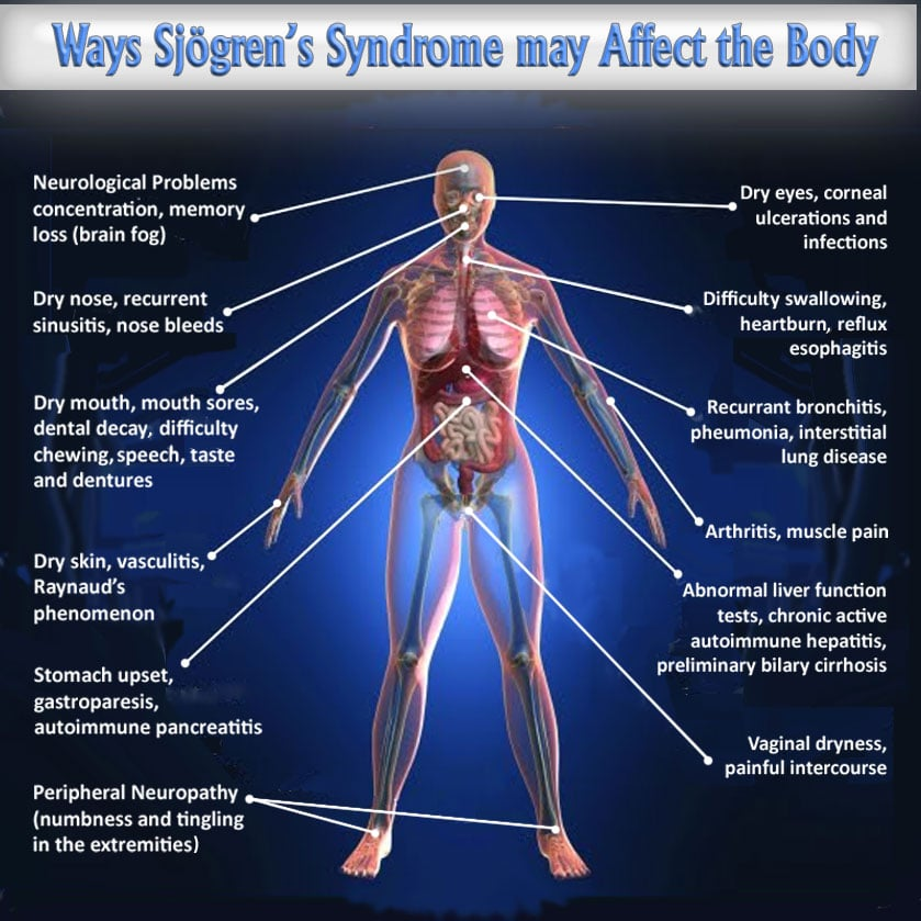 sjogren syndrome a chronic autoimmune disease Search and watch sjogrens syndrome videos and get idea about treatment options sjogren's syndrome is an autoimmune disease.