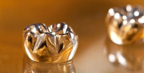Gold-Crown-for-back-teeth-(very-durable,-good-for-teeth-grinders)-They-have-largely-been-replaced-by-more-natural-looking-alternatives